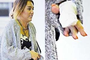 Miley rushed to hospital after nasty accident in the kitchen