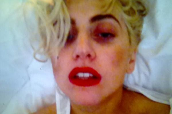 Lady Gaga 'woozy' and 'bruised' after Auckland show