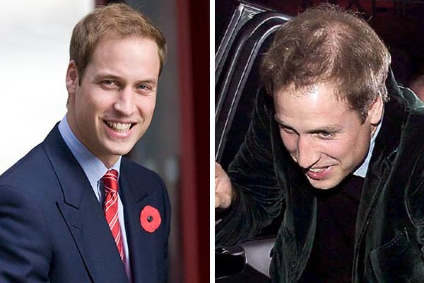 Prince William warned of baldness
