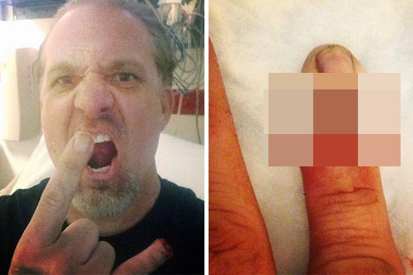 Jesse James chops off his finger! - Warning: this is pretty gross
